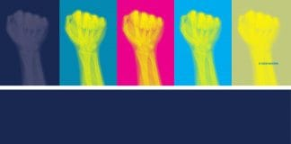 Image for Revolution or Evolution article - colourful xray of fists